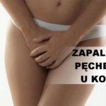 Zapalenie pęcherza u kobiet